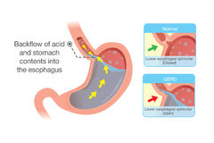 Acid in stomach back up into esophagus Royalty Free Stock Image