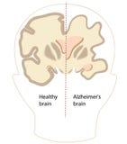 Alzheimer disease Stock Photos