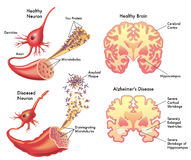 Alzheimer's disease Royalty Free Stock Photo