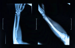 Arm fracture seen on x-ray Royalty Free Stock Photos