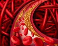 Artery Disease Royalty Free Stock Image