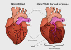 Bland White Garland syndrome versus normal heart anatomy Royalty Free Stock Images