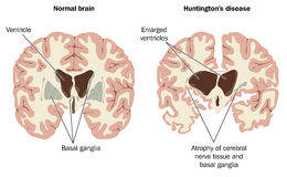 Brain atrophy in Huntingtons disease Royalty Free Stock Photo