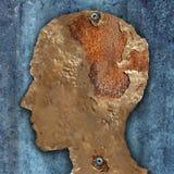 Brain Disease And Dementia Royalty Free Stock Photo