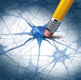 Brain Disease Royalty Free Stock Photography