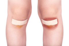 Child knees with a plaster (for wounds) and bruise Stock Photo
