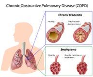 Chronic obstructive pulmonary disease Stock Images