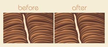 Dandruff hair problem Royalty Free Stock Image