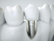 Dental implant - 3d rendering Royalty Free Stock Photos