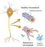 Disintegrating microtubules in Alzheimer disease Royalty Free Stock Photos