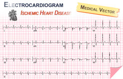Electrocardiogram ( ECG , EKG ) of Ischemic Heart Disease ( Myocardial Infarction ) and Anatomy of heart icon Stock Photography
