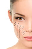 Facelift anti-aging treatment on woman face skin Stock Photography