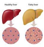 Fatty liver disease Royalty Free Stock Photos