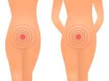 Female health vaginal problem concept Stock Image