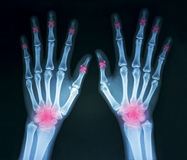 Film x-ray hands Royalty Free Stock Photography
