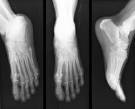 Foot x-ray Royalty Free Stock Photo