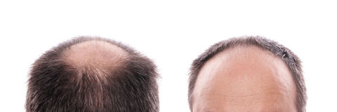 Hair loss Royalty Free Stock Photography