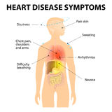 Heart Disease Symptoms Royalty Free Stock Photo