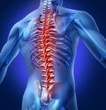 Human-Back-Pain Royalty Free Stock Photo