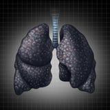 Human Lung Disease Royalty Free Stock Photos