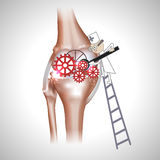 Knee joint abstract treatment Royalty Free Stock Photography