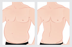 Male abdomen before and after treatment Stock Images