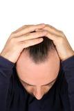 Man controls hair loss Stock Photos