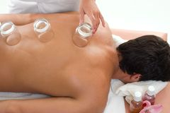 Natural Healing - Cupping Stock Photography