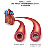 Normal artery and unhealthy artery Royalty Free Stock Images