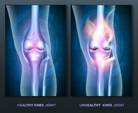 Normal knee and unhealthy knee joint Royalty Free Stock Photography
