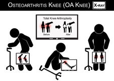 Old man pain at his knee , Monitor show image of Total knee arthroplasty ( before and after surgical treatment ) Osteoarthritis kn Stock Photo