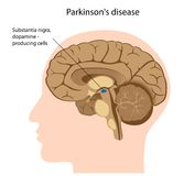 Parkinson's disease Royalty Free Stock Images