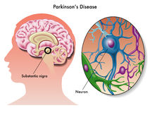 Parkinson's disease Royalty Free Stock Photo