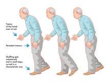 Parkinsons disease Royalty Free Stock Photos