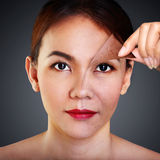 Problem and clean skin Stock Photo