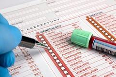 Räcka påfyllning av en form av analys vid ett rör för blodprövkopia Fotografering för Bildbyråer