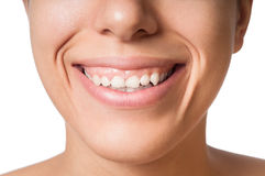 Small Teeth Royalty Free Stock Photos