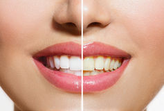 Teeth Before and After Whitening Stock Photos