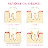 Tooth periodontal disease, Royalty Free Stock Photo