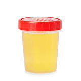 Urine sample in container Stock Photos