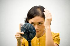 Woman with hair loss problem Stock Photo