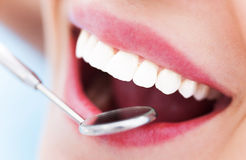 Woman teeth and a dentist mirror Stock Images
