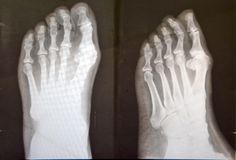 X ray of female feet Royalty Free Stock Image