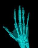 X-Ray Stock Photography