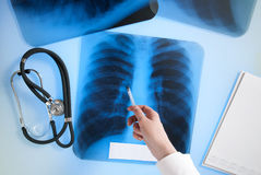 X-ray image of lungs Royalty Free Stock Photo