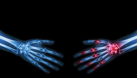 X-ray normal person is shaking hand with Arthritis hand person Royalty Free Stock Photo